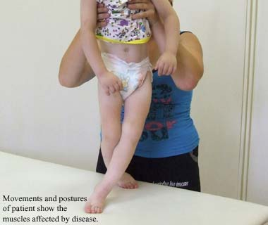 Movements and postures of the patient show the muscles affected by disease.