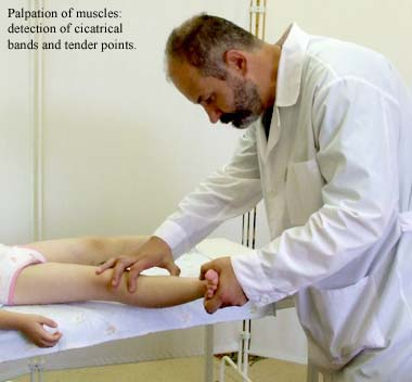 Palpation of muscles: detection of cicatrical bands and tender points.